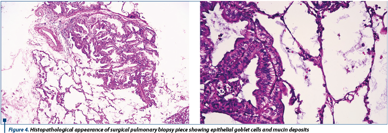 Figure 4. Histopathological appearance of surgical pulmonary biopsy piece showing epithelial goblet cells and mucin deposits