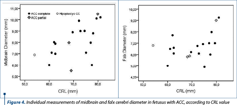 Figure 4. Individual measurements of midbrain and falx cerebri diameter in fetusus with ACC, according to CRL value