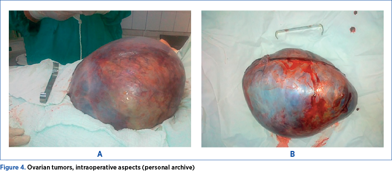 Figure 4. Ovarian tumors, intraoperative aspects (personal archive)