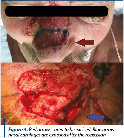 Figure 4. Red arrow – area to be excised. Blue arrow – nasal cartilages are exposed after the reexcision