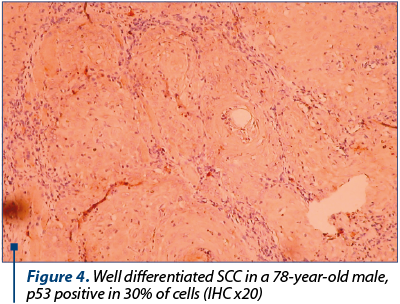 Figure 4. Well differentiated SCC in a 78-year-old male, p53 positive in 30% of cells (IHC x20)