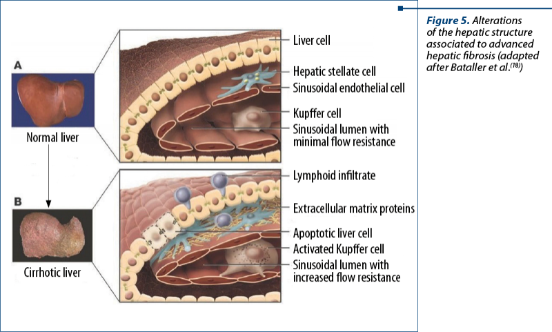 Figure 5. Alterations of the hepatic structure associated to advanced hepatic fibrosis (adapted after Bataller et al.(18))