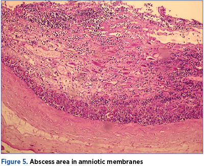 Figure 5. Abscess area in amniotic membranes