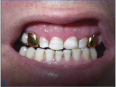 Figure 5. Final aspect of aesthetic direct resin composite restoration in tooth 21
