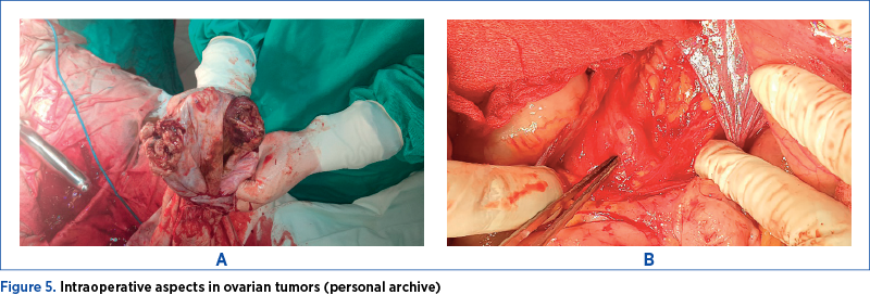 Figure 5. Intraoperative aspects in ovarian tumors (personal archive)