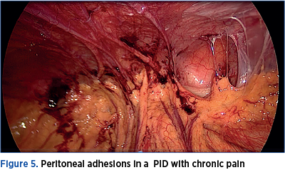 Figure 5. Peritoneal adhesions in a  PID with chronic pain