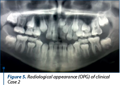 Figure 5. Radiological appearance (OPG) of clinical Case 2