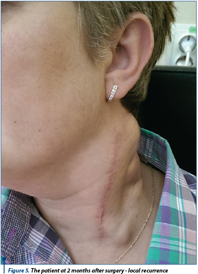 Figure 5. The patient at 2 months after surgery - local recurrence