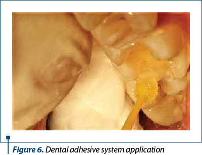Figure 6. Dental adhesive system application