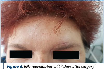 Figure 6. ENT reevaluation at 14 days after surgery