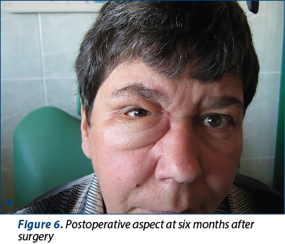 Figure 6. Postoperative aspect at six months after surgery