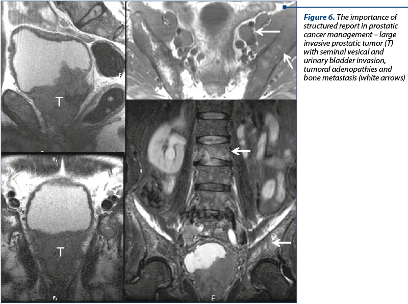 Figure 6. The importance of structured report in prostatic cancer management – large invasive prostatic tumor (T) with seminal vesical and urinary bladder invasion, tumoral adenopathies and bone metastasis (white arrows)