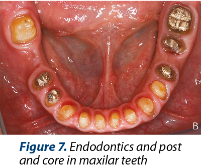Figure 7. Endodontics and post and core in maxilar teeth