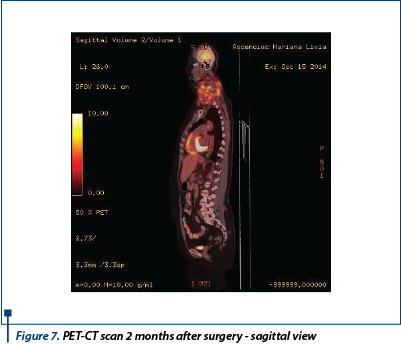 Figure 7. PET-CT scan 2 months after surgery - sagittal view