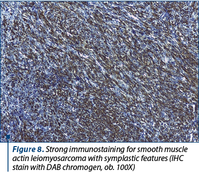 Figure 8. Strong immunostaining for smooth muscle actin leiomyosarcoma with symplastic features (IHC stain with DAB chromogen, ob. 100X)
