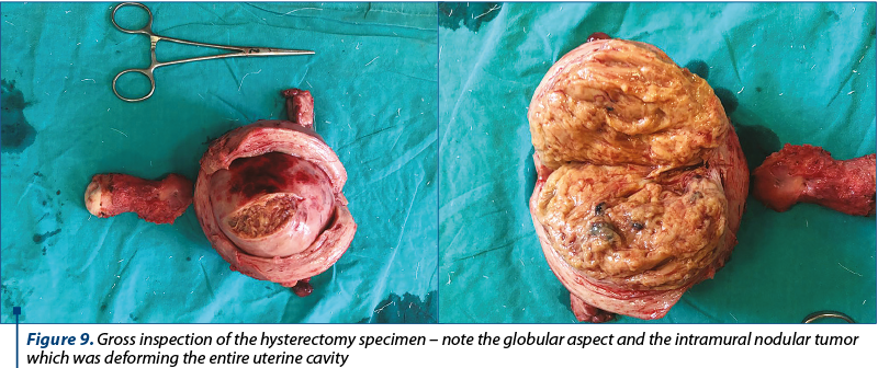 Figure 9. Gross inspection of the hysterectomy specimen – note the globular aspect and the intramural nodular tumor which was deforming the entire uterine cavity