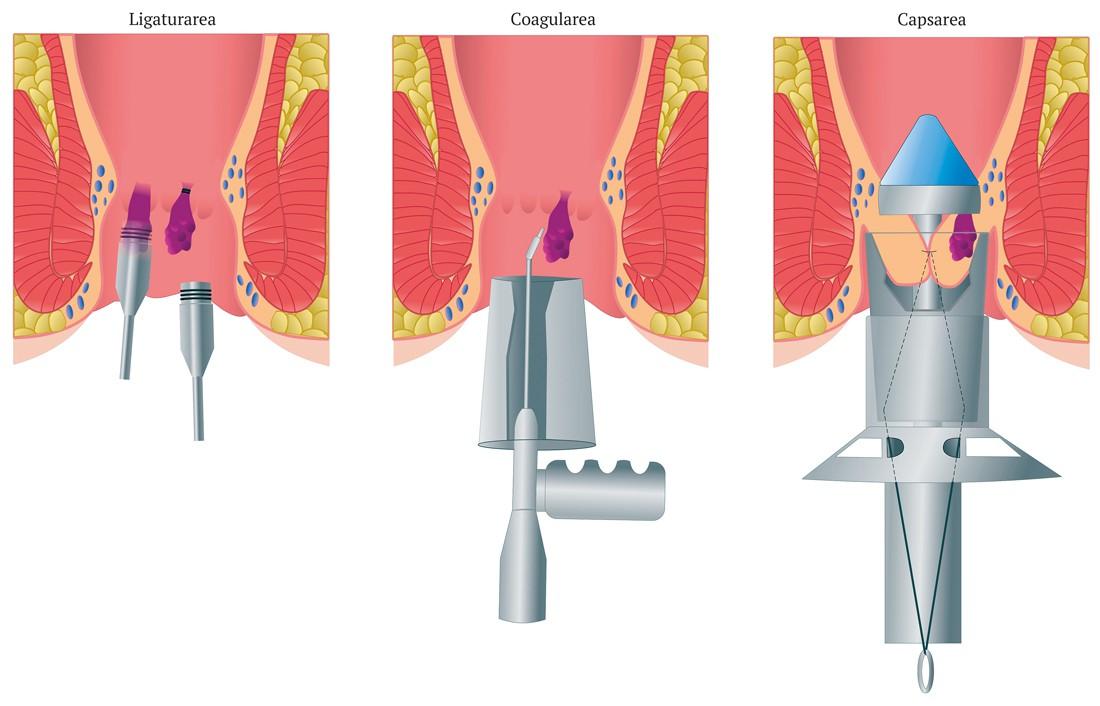 cu durere de hemoroizi la nivelul articulației șoldului ecografie în tratamentul artrozei