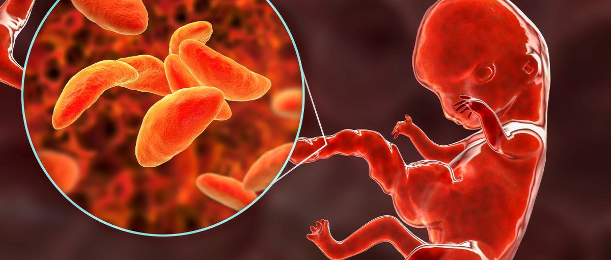 toxoplasmoza congenitala