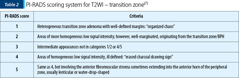 Table 2. PI-RADS scoring system for T2WI – transition zone(7)